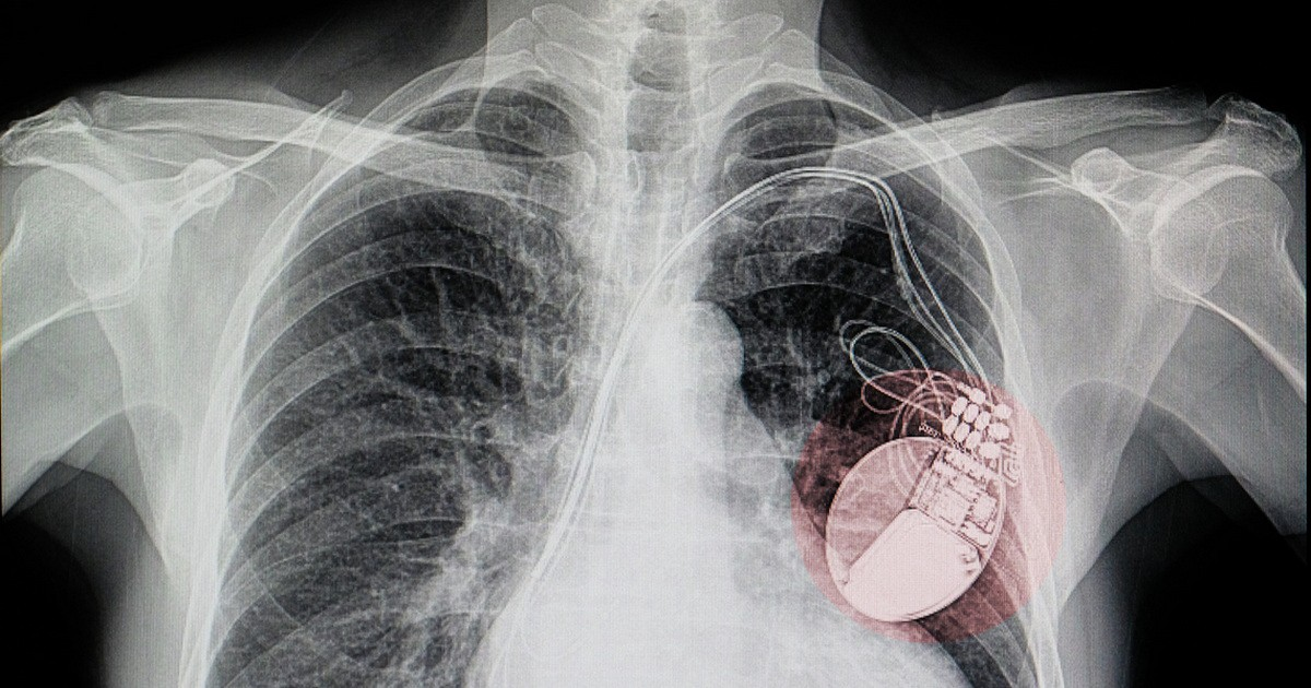 Xray showing an implanted pacemaker.