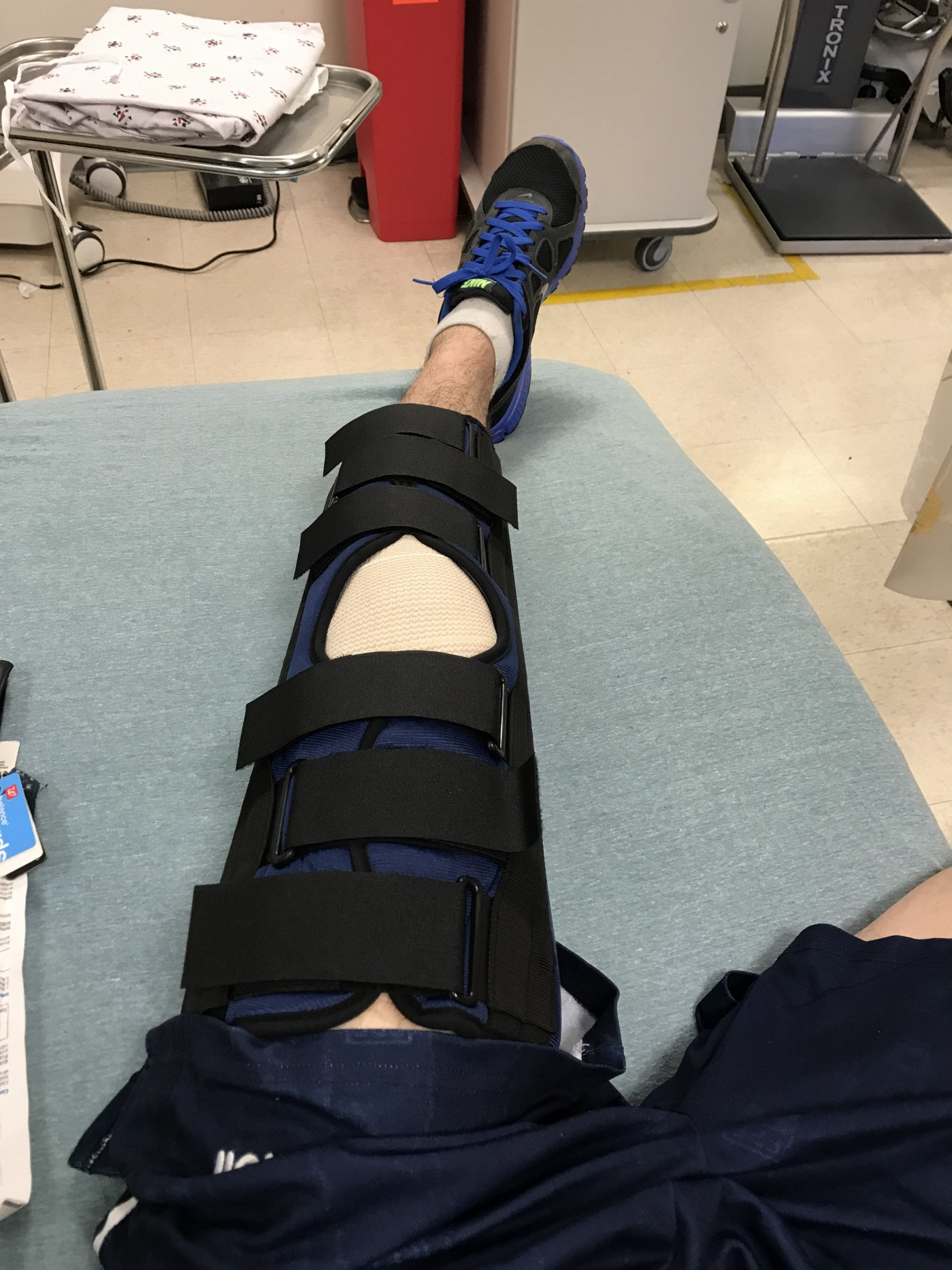 Picture of my perfectly healthy knee with a strange device around it.