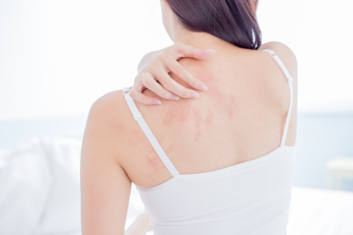 Stress Rash: Tips for Identification and Treatment
