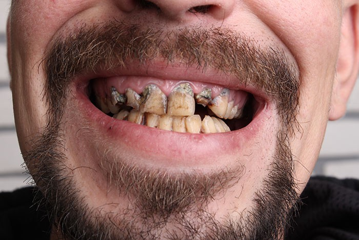 """Image result for bad teeth pictures"""""""
