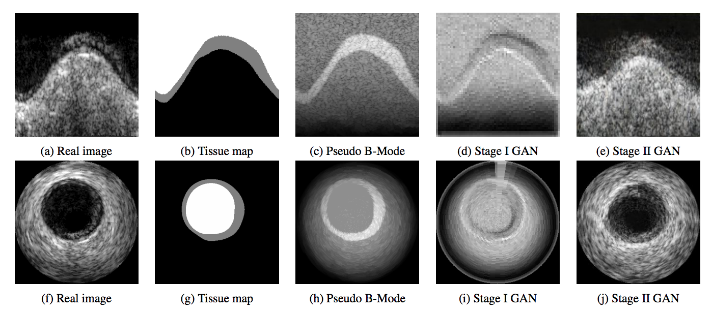 Sound the Alarm! Deep Learning & Ultrasound Scans - Stanford AI for