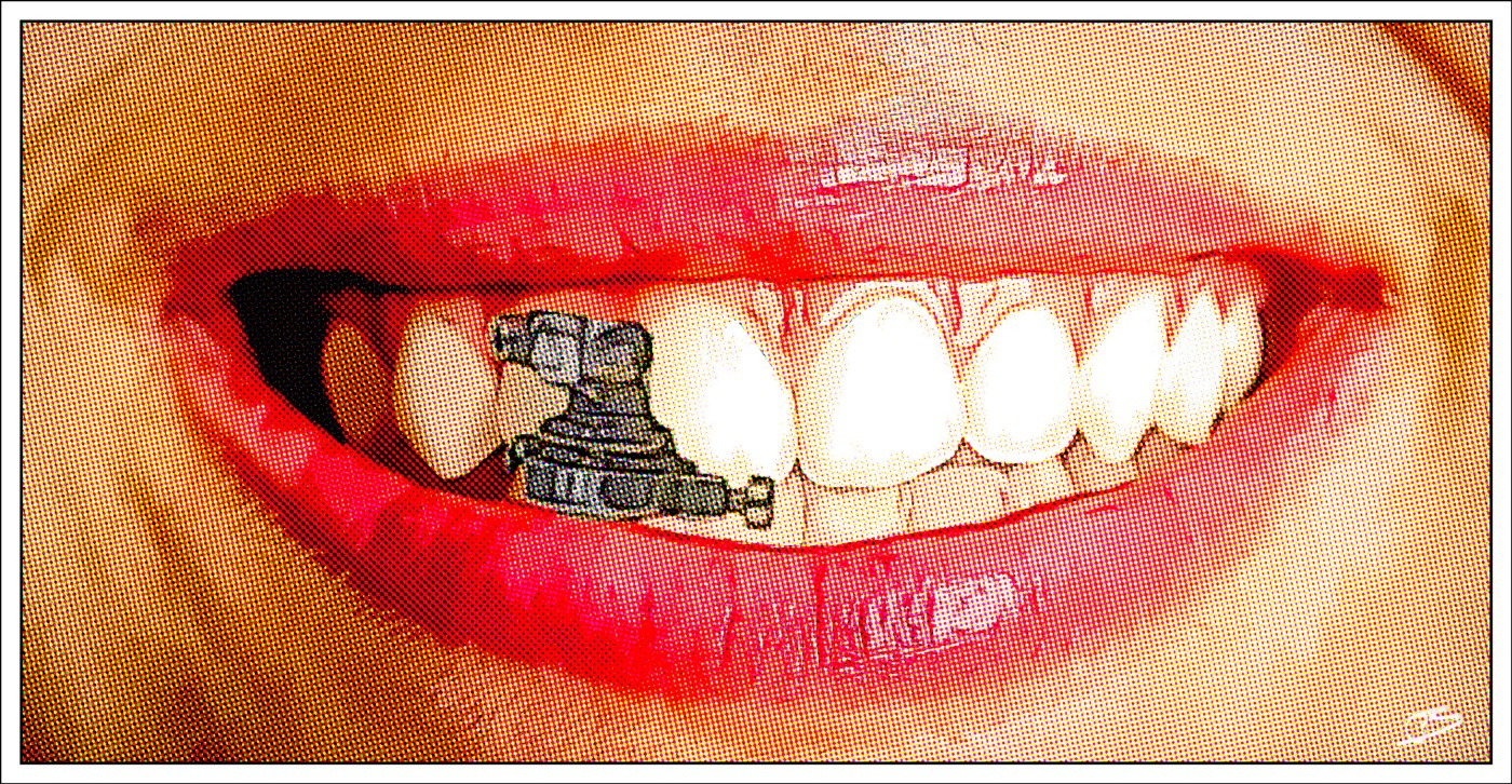 Teeth with lock applied