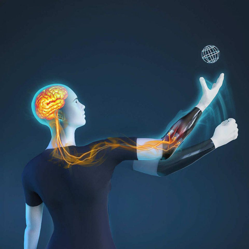 Nerve-controlled Prosthetic arm