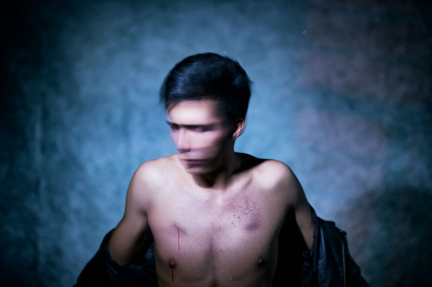 A man in darkened room with a cut on his chest.