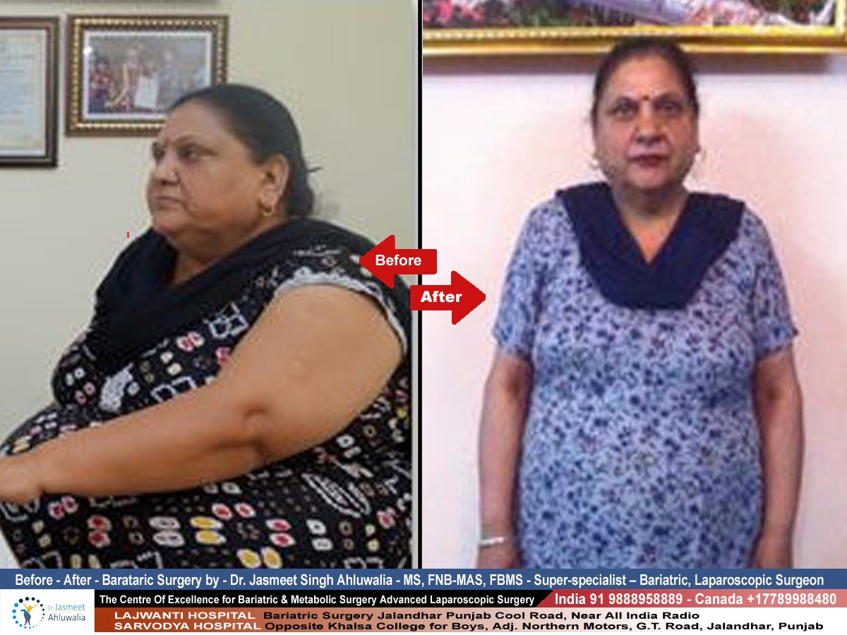 Before, After Shocking 😲 Results Of Bariatric Surgery in Jalandhar, At Star Hospital Jalandhar By Dr Jasmeet Singh Ahluwalia