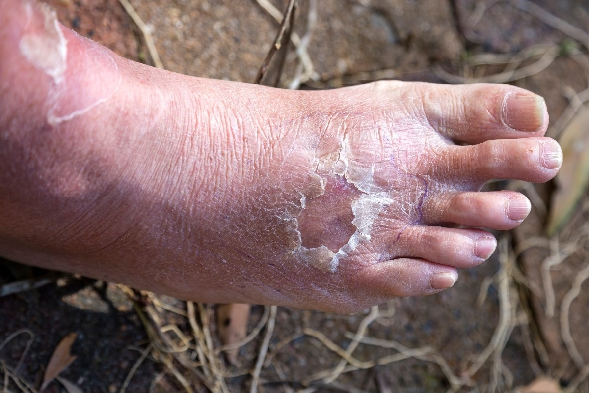 Everything You Need to Know About Cellulitis in next 60 seconds