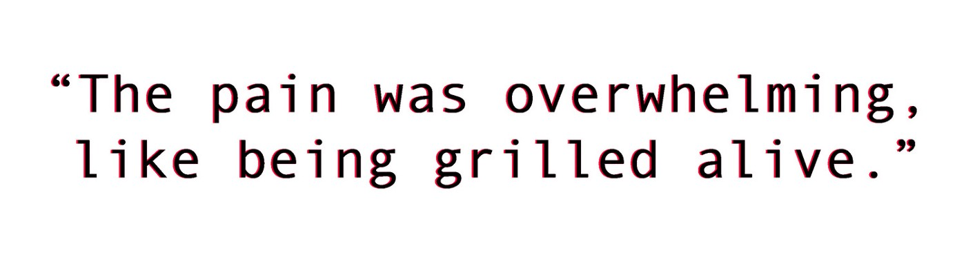 """""""The pain was overwhelming, like being grilled alive."""""""