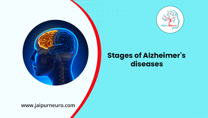 Stages of Alzhemire's diseases