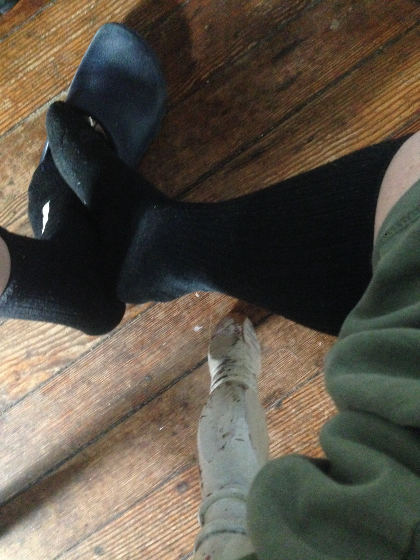photo of two legs; short black sock on the left, longer one on the right