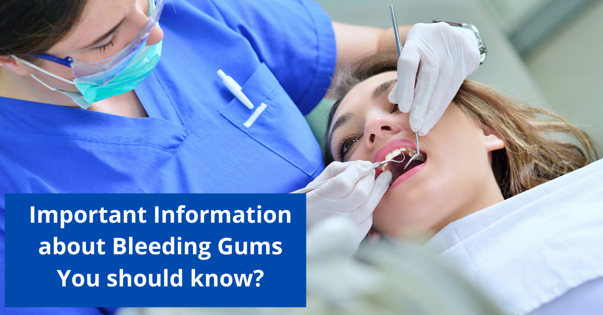 Important Information about Bleeding Gums You should know