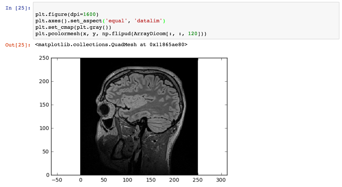 Medical Image Analysis with Deep Learning — I - Taposh Dutta-Roy