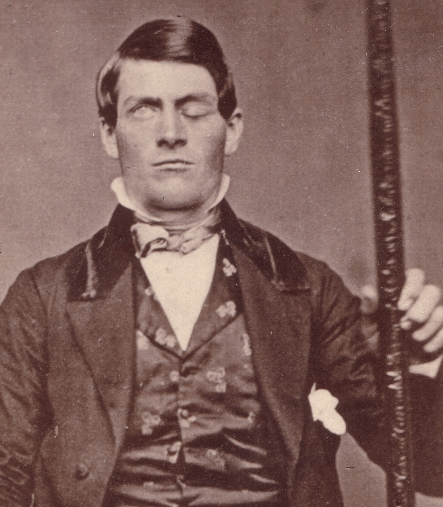 the curious case of phineas gage essay