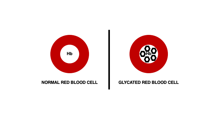 The hemoglobin (Hb) in a red blood cell can connect with blood glucose turning it into a glycated red blood cell.