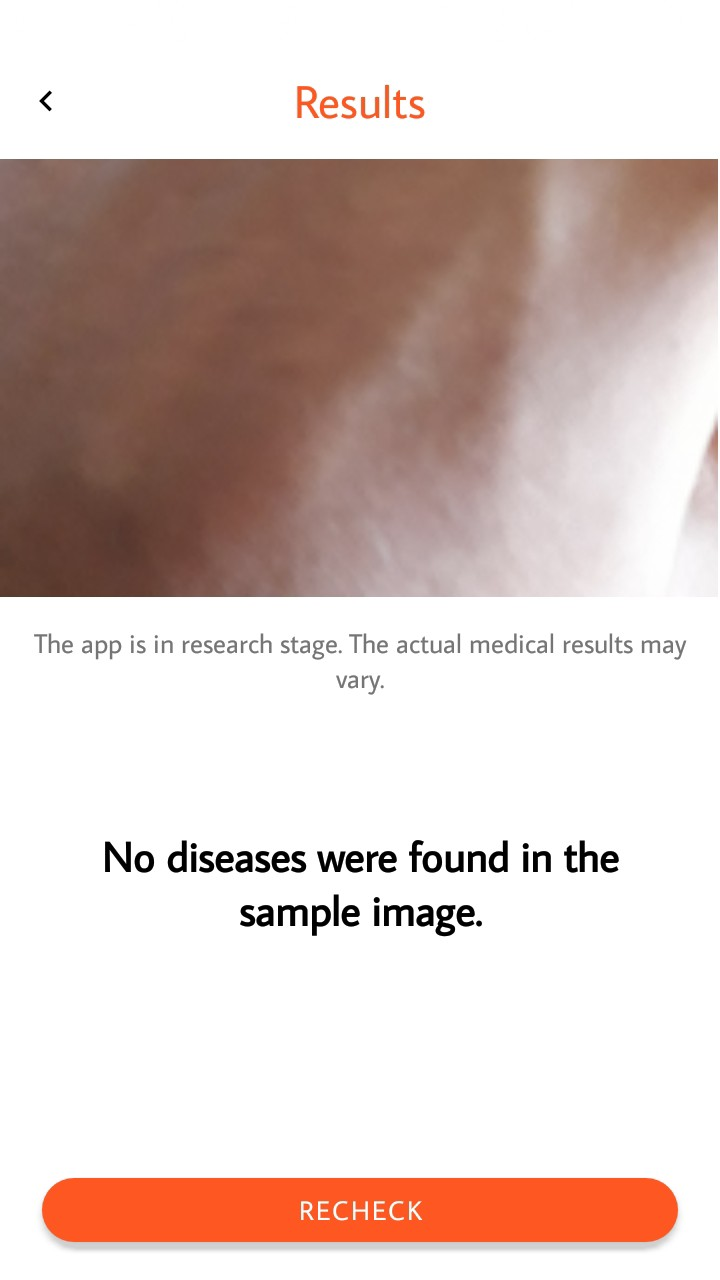How I made Skinly for Melanoma Detection in Android