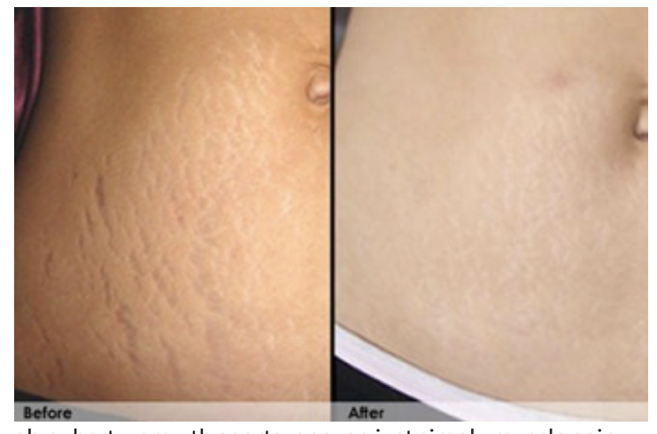 Stretch Mark Cream By Revitol Review By Reviews T V Jul 2020