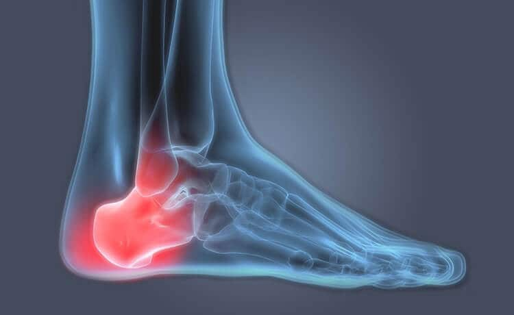 Heel Spur — Causes and Treatments