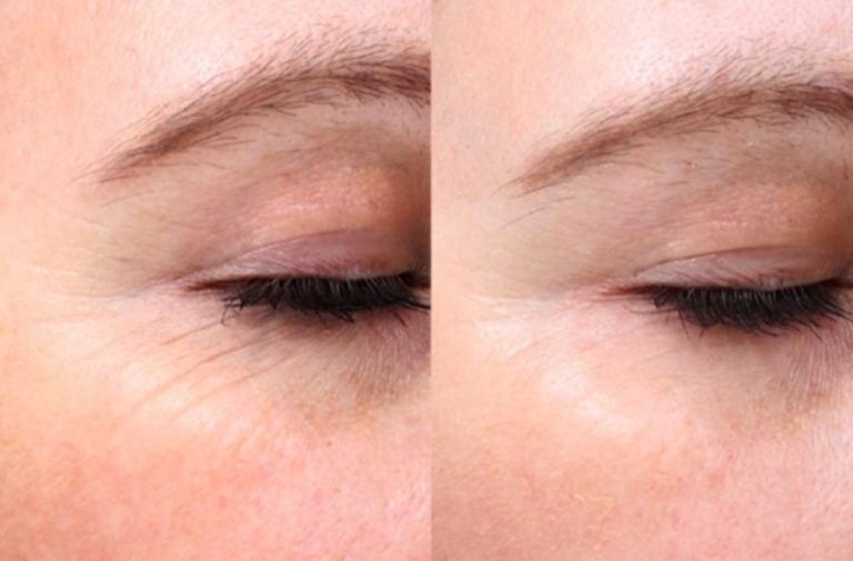 How Great Is Picosure Laser For Your Skin? Know More About It Here