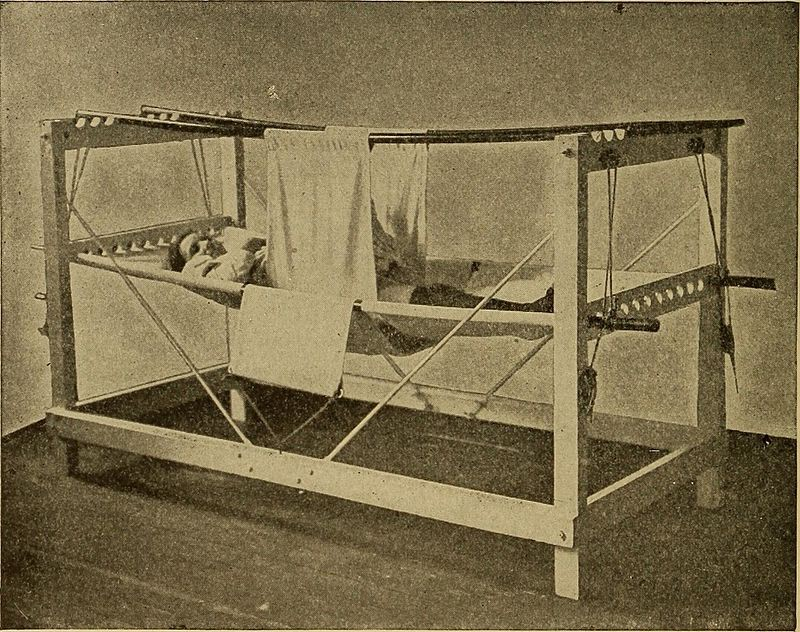 Patient in a symphysiotomy hammock after surgery, 1907.