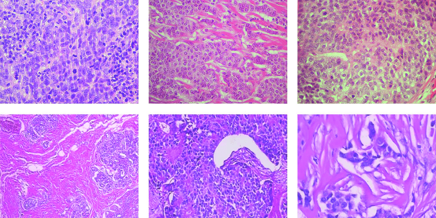 Detecting breast cancer in histopathological images using