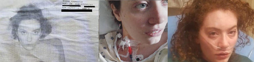 3 photos of the author: a psych ward ID photo, wearing a hospital gown with a neck port, wearing an oxygen cannula.