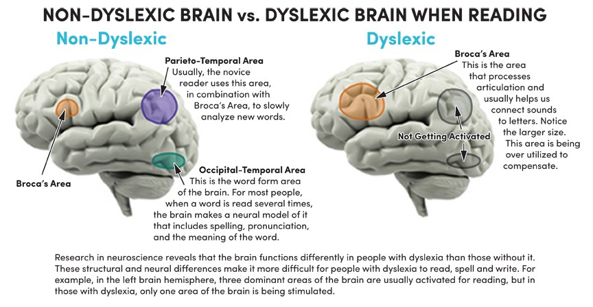 Curoisity. How an encounter with dyslexia set me… | by Dayeon Hwang | Creative Labs | Medium
