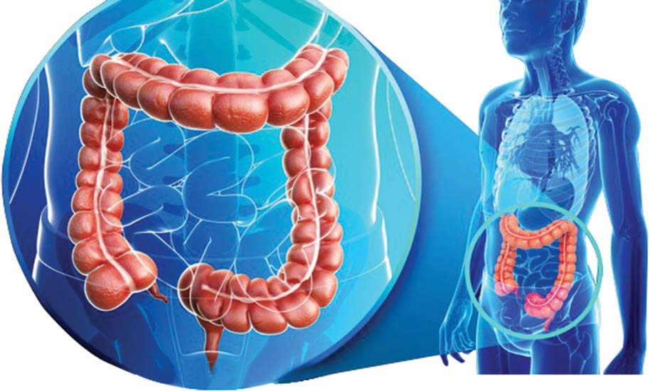 Best Colon Cancer Treatment Center in Los Angeles, CA