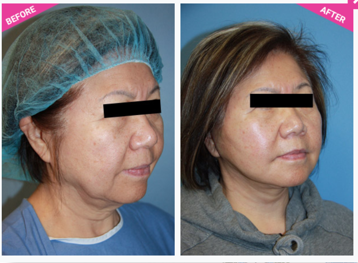 Face Lift (Rhytidectomy) Before After - Beverly Hills Plastic
