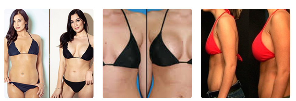 Best Breast Enhancement Tips Breast Enhancement Breast Actives