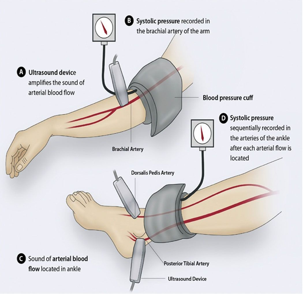 QuantaFlo, a Reliable Alternative to ABI Testing and Ankle