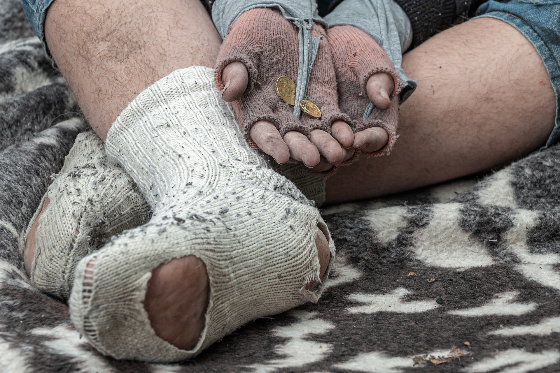 A homeless man with torn socks and gloves begging for money.