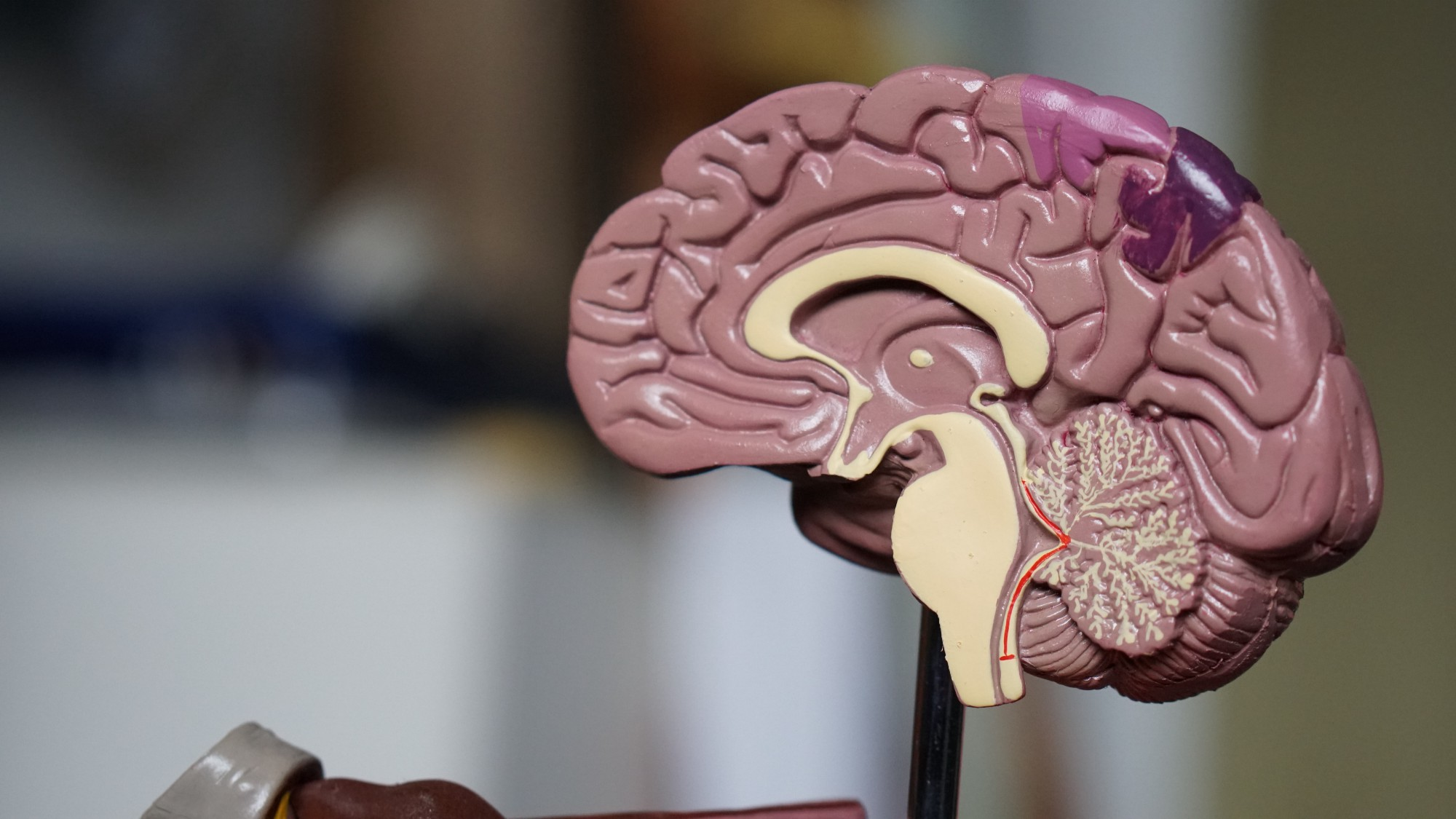 A plastic model of the human brain