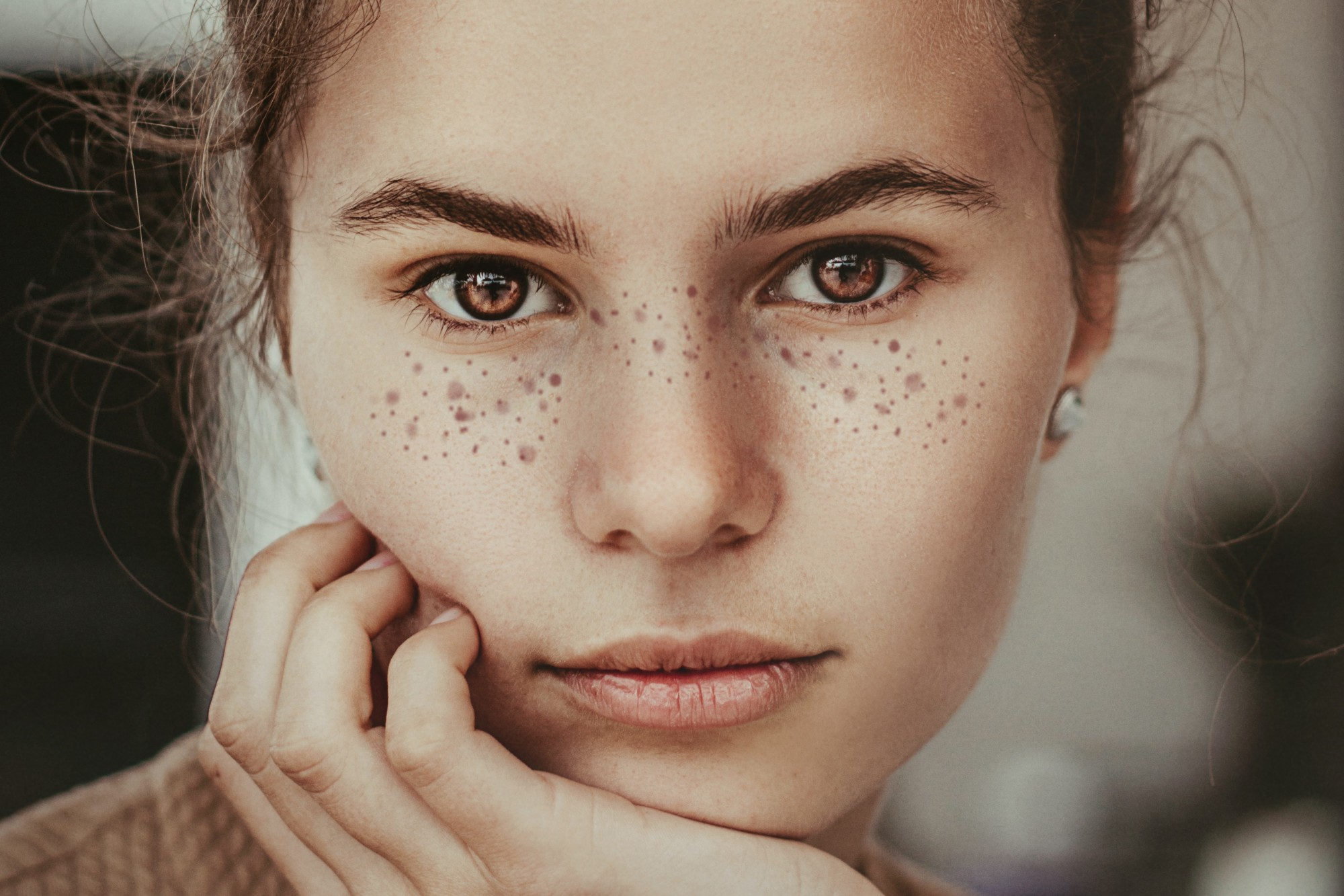 Portrait of a woman showing off her unique freckly features
