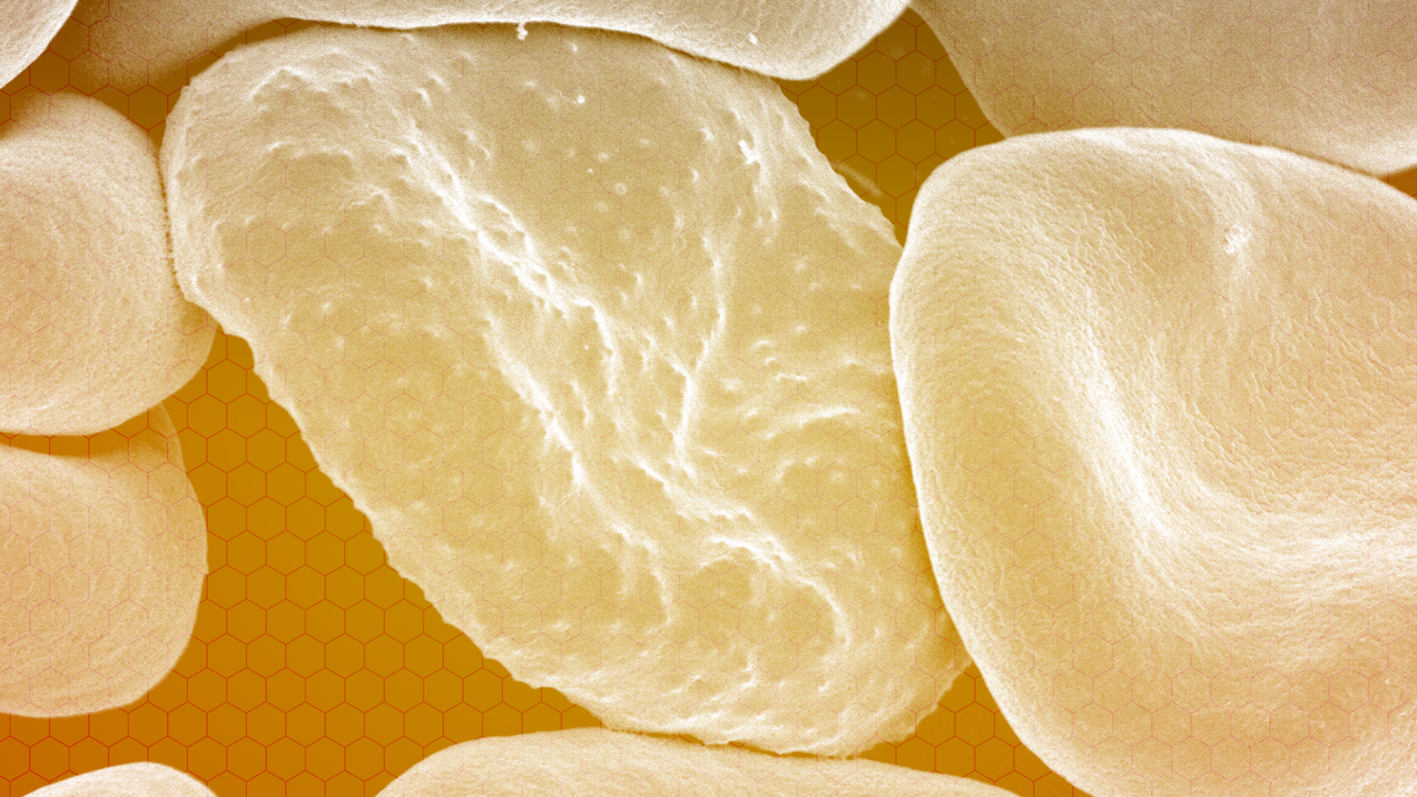 An up-close view of blood cells, with a transparent yellow overlay.