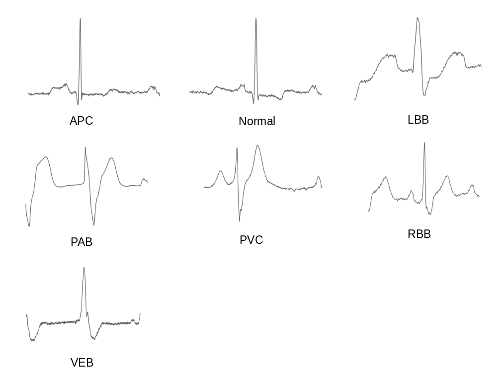 ECG arrhythmia classification using a 2-D convolutional
