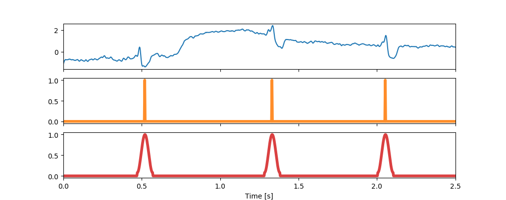 Machine Learning for medicine: QRS detection in a single