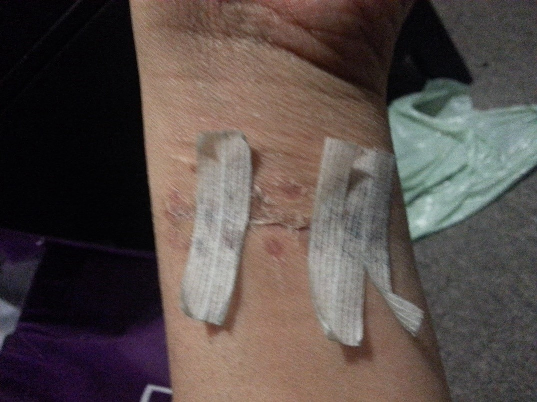 "I cut deep enough to slit my wrist open"" - Mental Health"