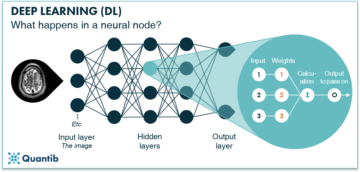 schematic figure illustrating deep learning in radiology explaining what happens in a neural node