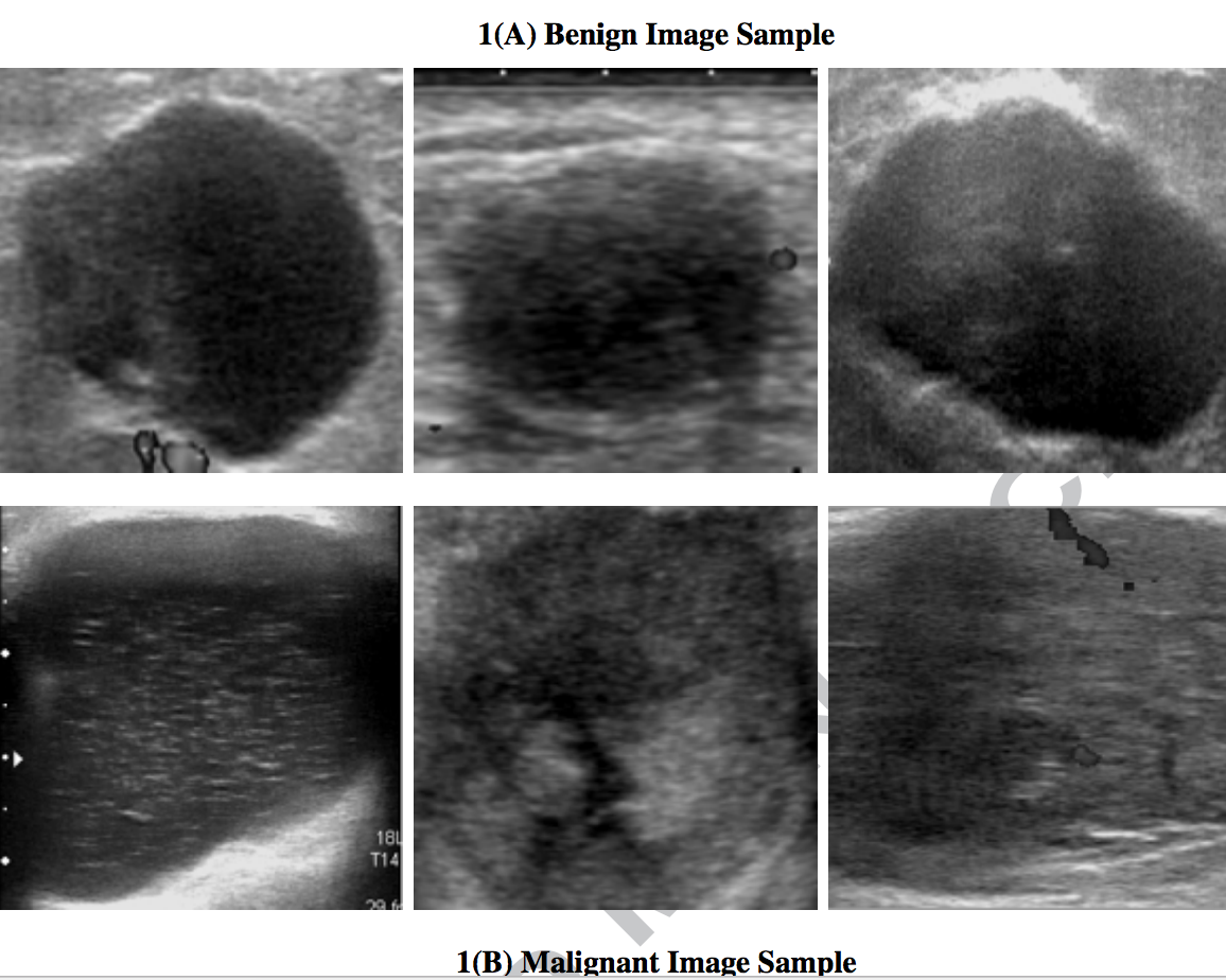 Finding Arthritis Breast Cancer Diagnosis With Ultrasound And