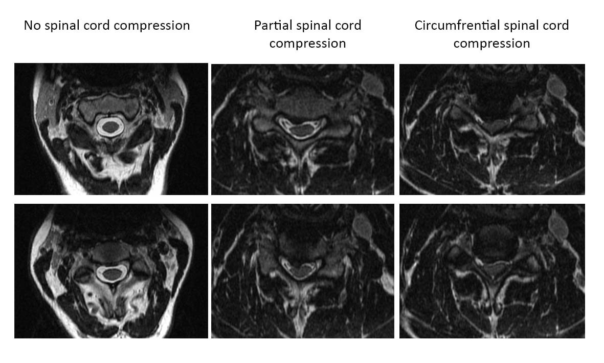 A Deep Learning Model to Detect Spinal Cord Compression in