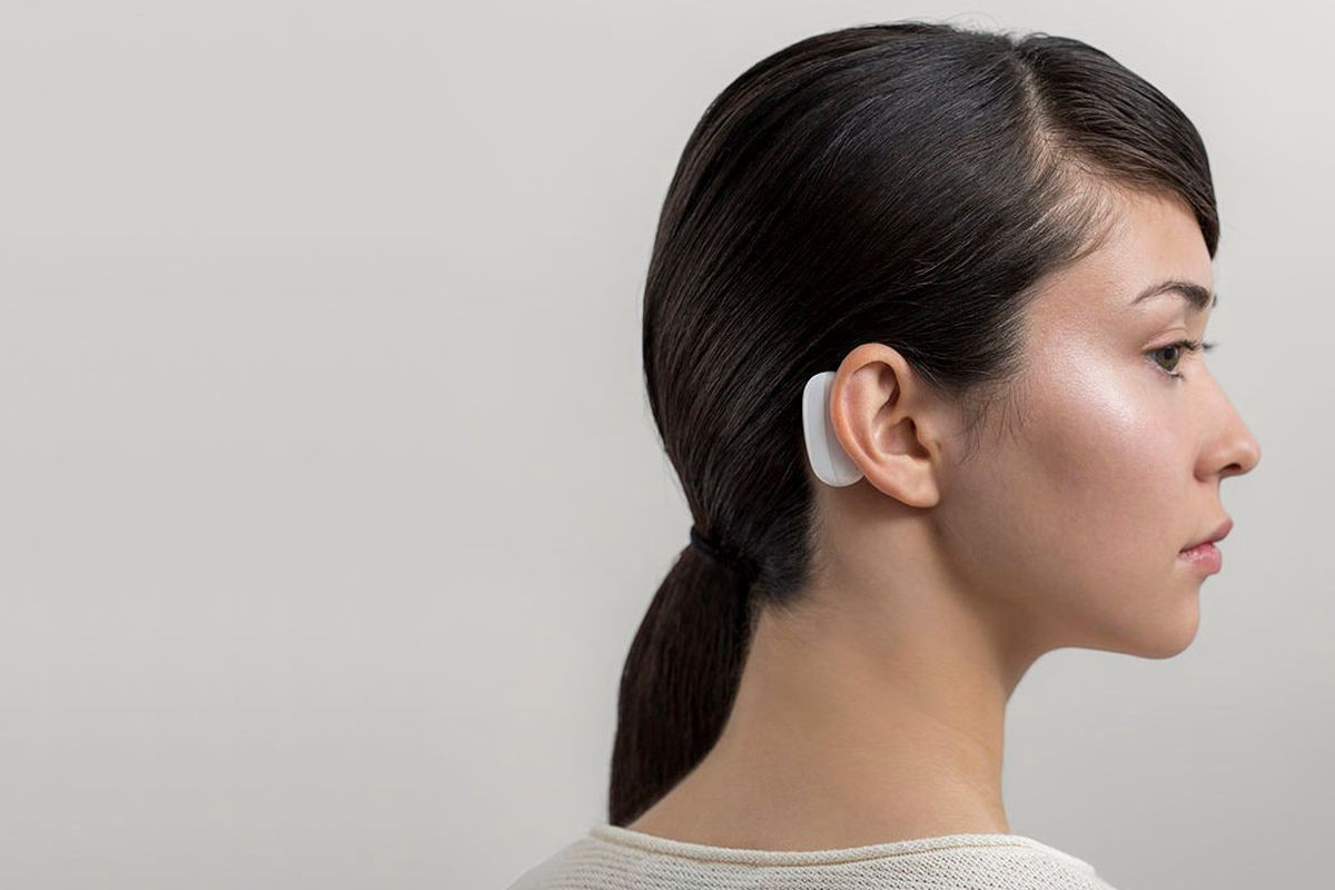 Photo: Woman with Neuralink brain implant device.