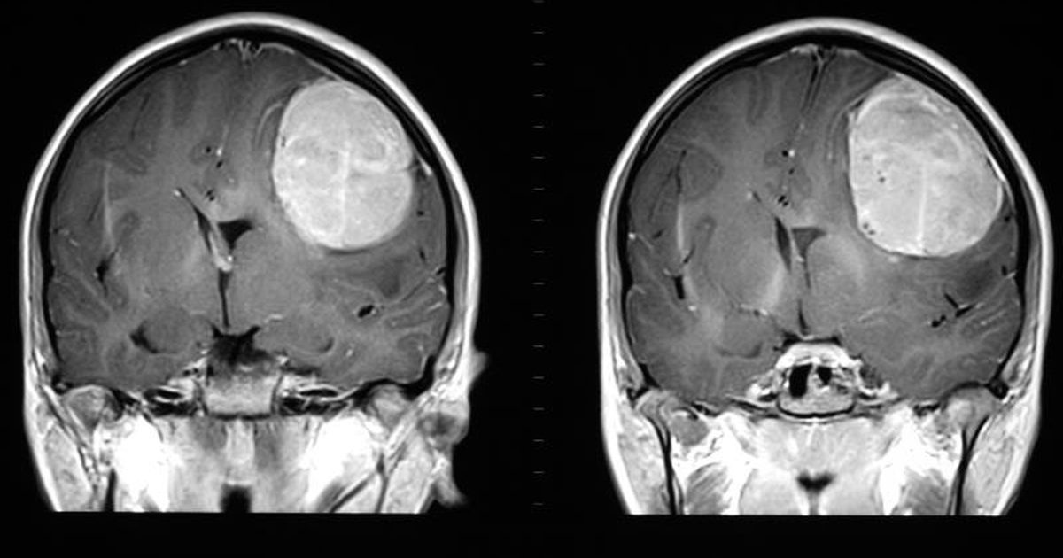 Glioblastoma Brain Cancer - Randy's Club - Medium