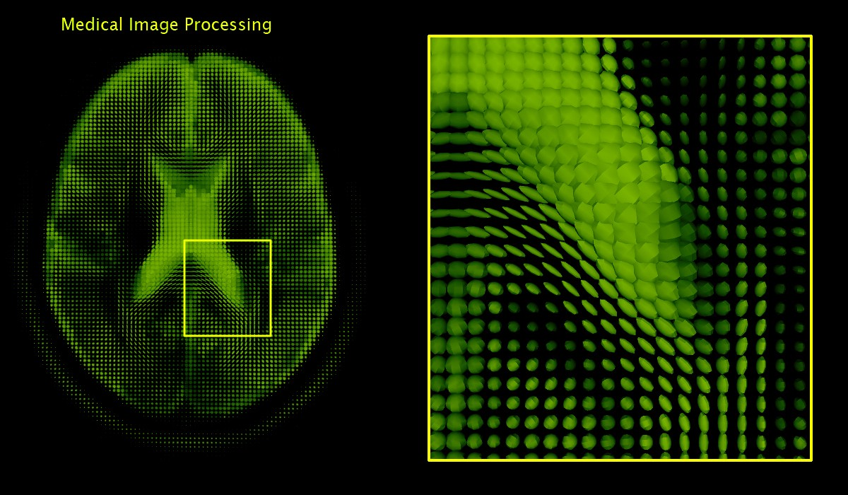 Medical Image Analysis with Deep Learning — II - Taposh Dutta-Roy ...