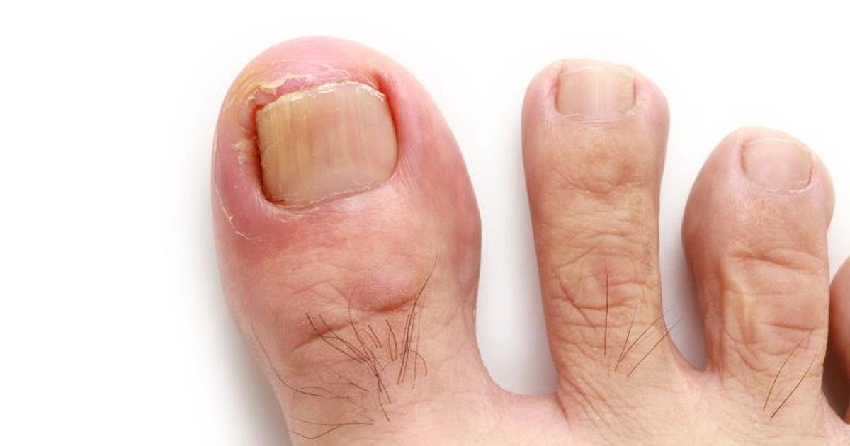 An Ingrown Toenail Is Sometimes Cited By Means Of Medical