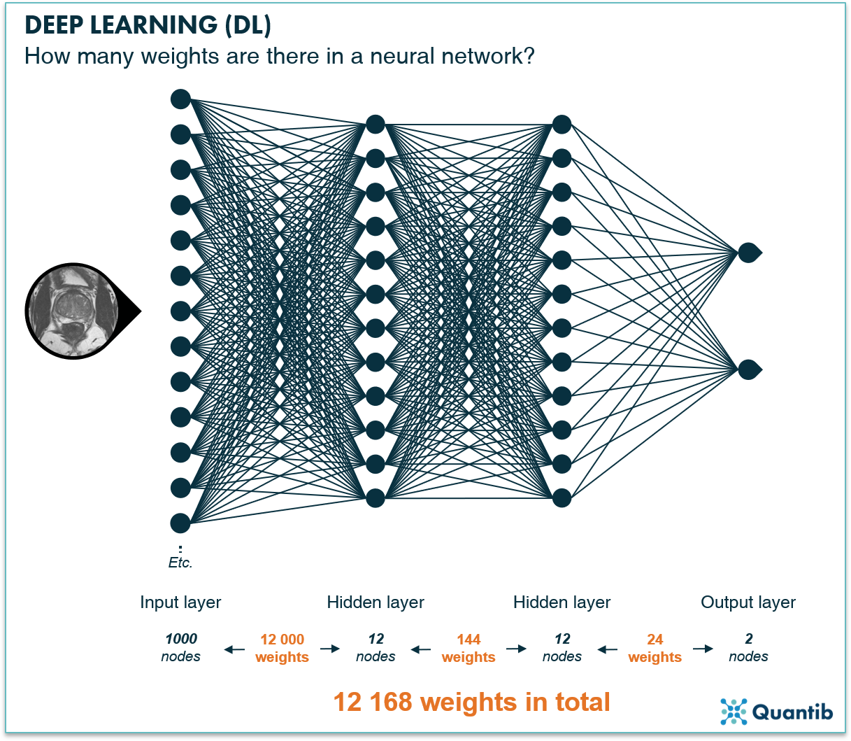 schematic figure illustrating deep learning in radiology explaining the amount of nodes in a deep neural network