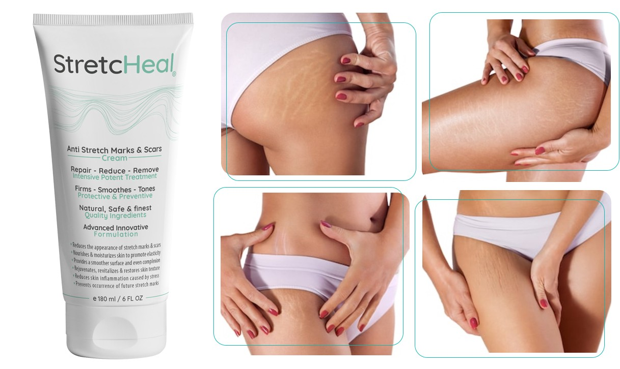 Stretcheal Real Reviews A Remedy To Stretch Marks That Beat My