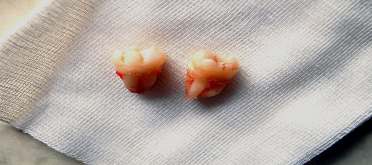 Things Causing More Than Ordinary Pain After Tooth Extraction By Safarian Dental Implants Medium