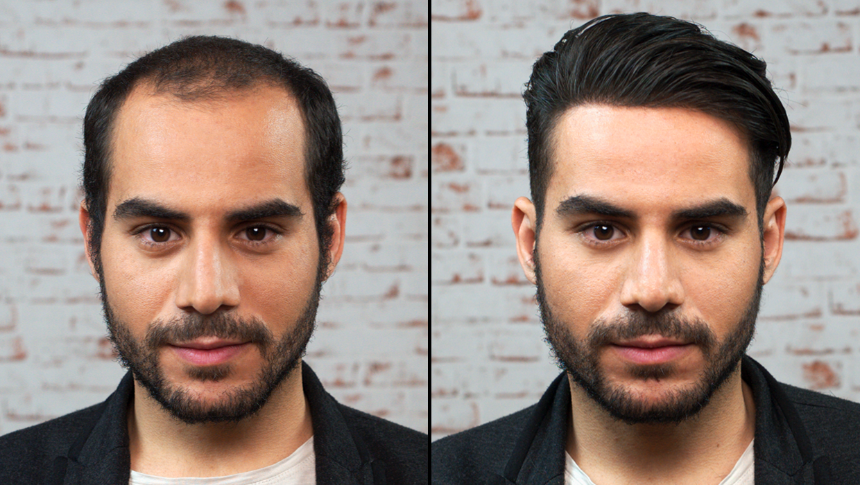 Which is the best hair transplant clinic in Pune? - akshay