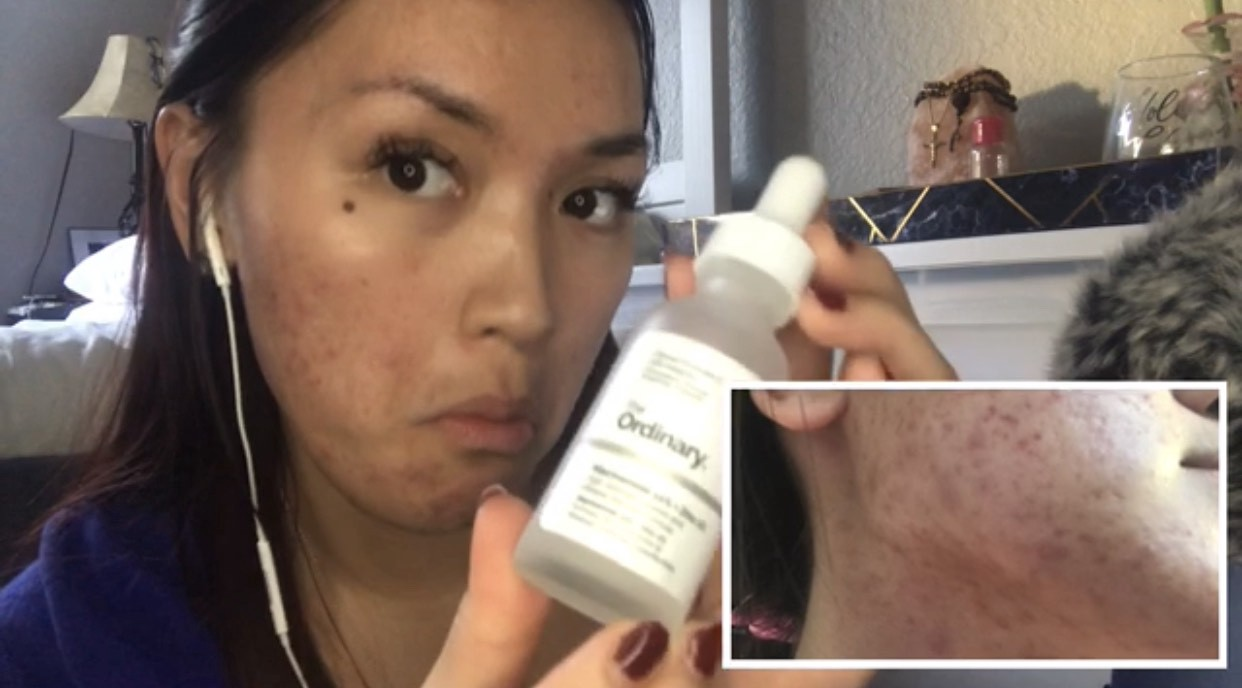 Acne Product Review 10 Days Using The Ordinary Niacinamide 10 Zinc 1 By Tryandreamz Medium