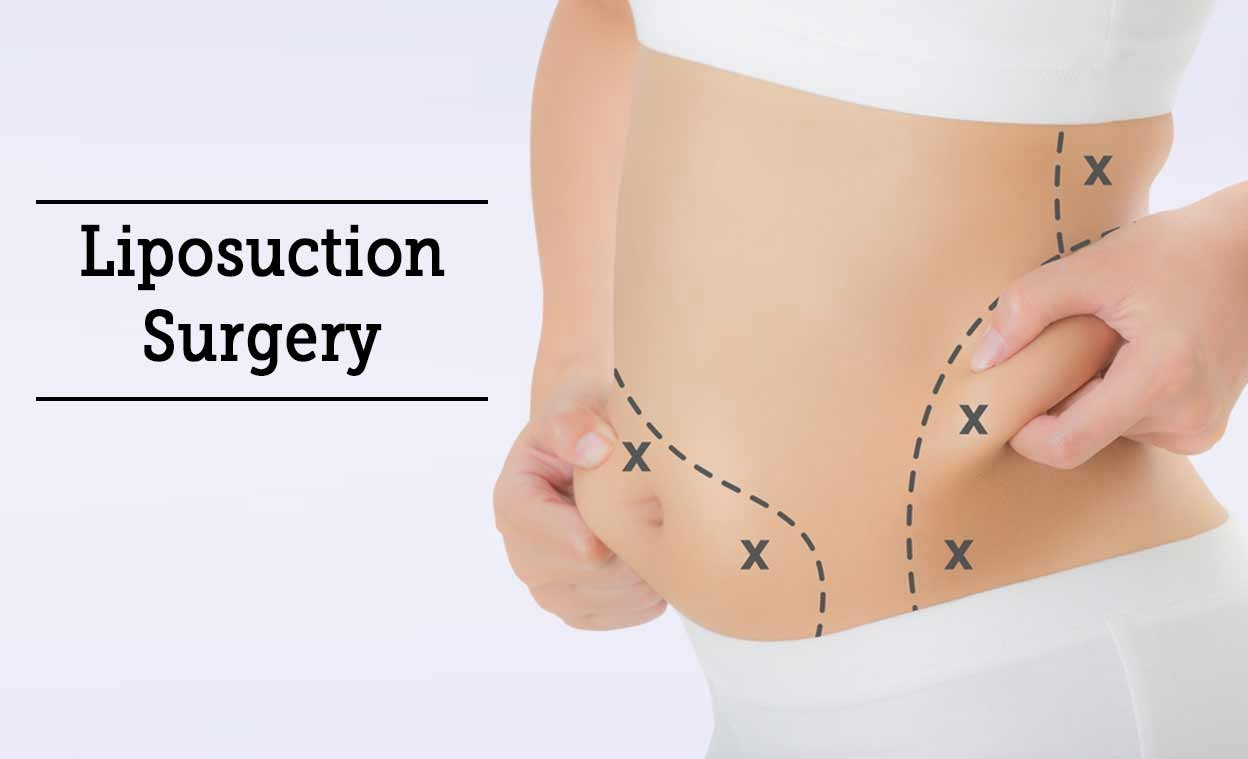 How Modern Liposuction Surgery Can Help You Remove Body Fat By Sheetal Goswami Medium
