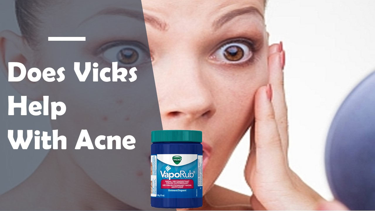Does Vicks Help With Acne - Bruce Austin - Medium